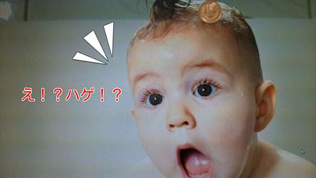 10円はげに気づいた赤ちゃん