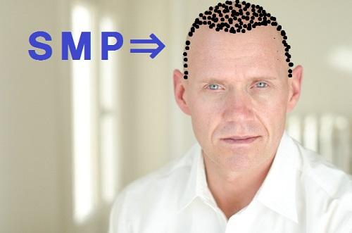 メディカルSMPをしたおっさん
