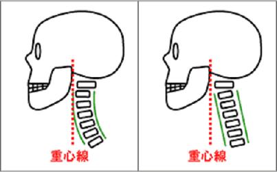 正常な首の骨とストレートネック