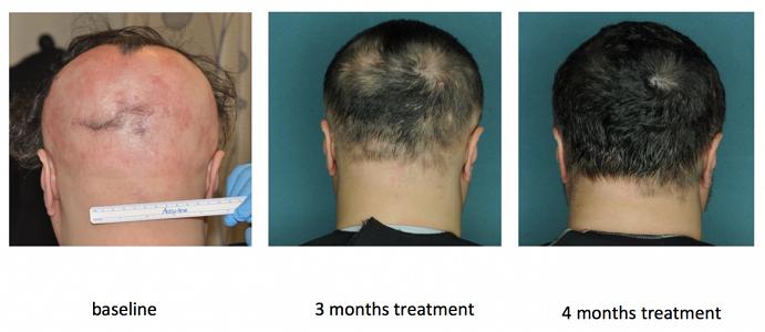 ルキソチリニブの円形脱毛症への効果