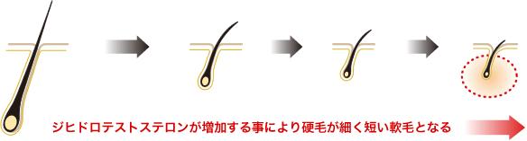 DHTの毛包への作用